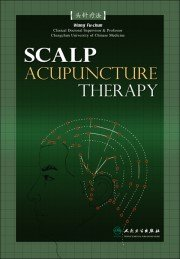 Scalp Acupunctrue Wall Chart - Click Image to Close